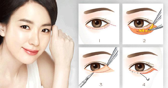 Cắt Da Thừa Mí Dưới Và Lấy Mỡ Mắt Trả Lại Vẻ Đẹp Cho Đôi Mắt