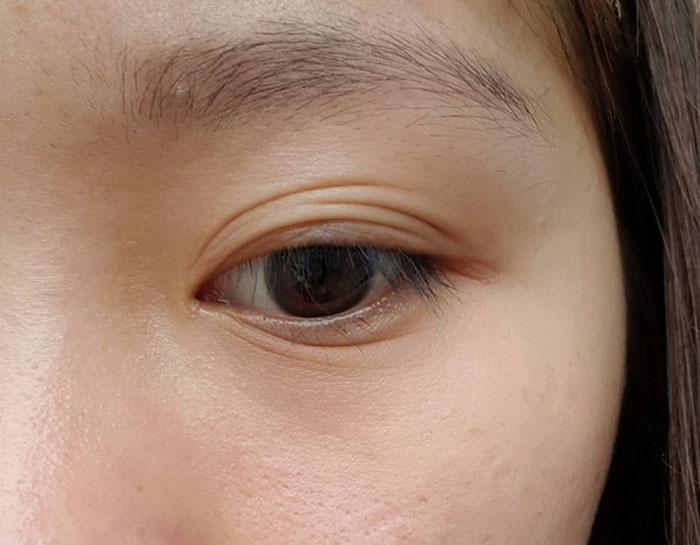 Mắt Nhiều Mí Là Gì? Cách Chỉnh Sửa Thành Mắt 2 Mí Nhanh Chóng