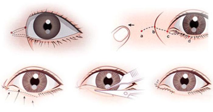 Mở Góc Mắt Trong Mini Giải Pháp Cho Đôi Mắt To Tròn Đẹp Xinh