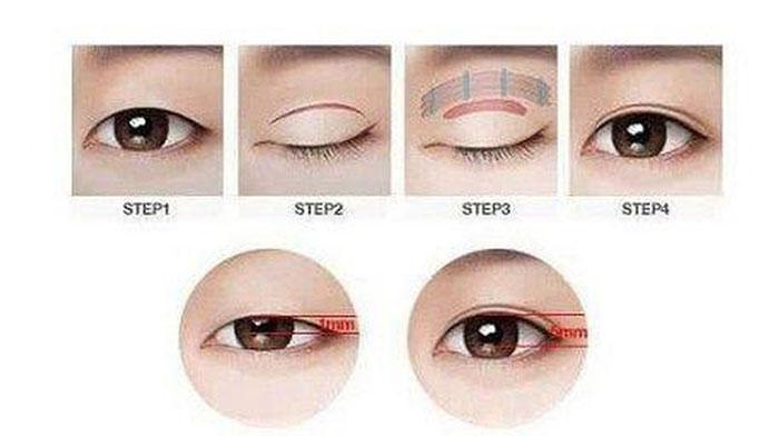 Phẫu Thuật Mắt To - Sở Hữu Ngay Đôi Mắt To Tròn Cuốn Hút
