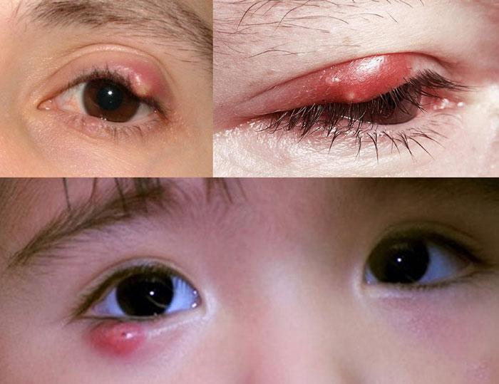5 Cách Chữa Lẹo Mắt, Chắp Mắt Hiệu Quả Tại Nhà
