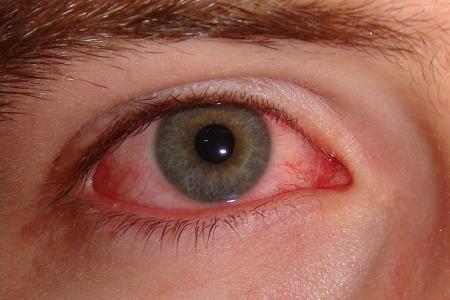 Tác hại khi gắn lông mi giả - Gây viêm mắt, hỏng giác mạc