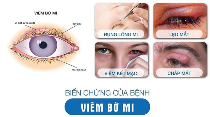 Viêm Bờ Mi Mắt Là Gì? Và Cách Điều Trị Hiệu Quả