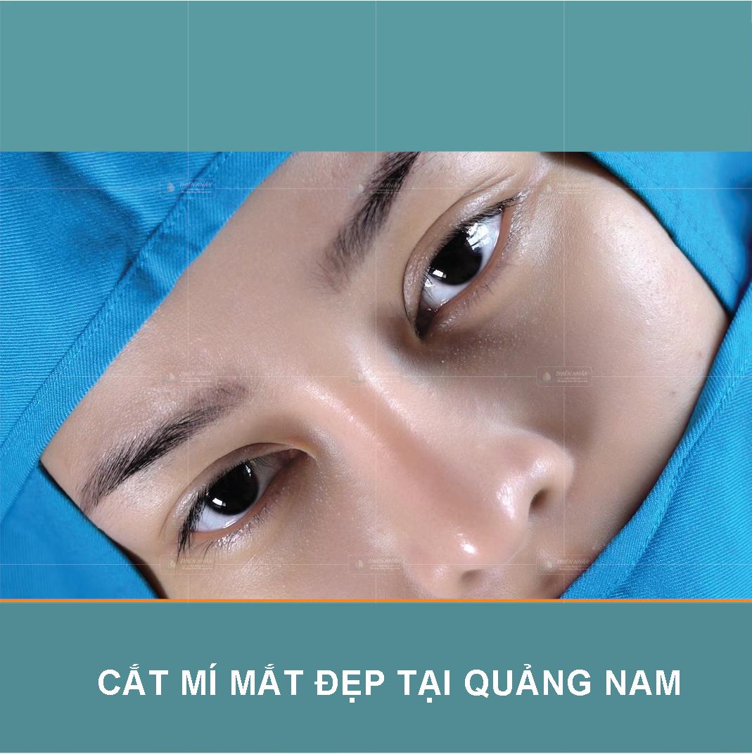 Cắt Mí Mắt Đẹp Tại Quảng Nam