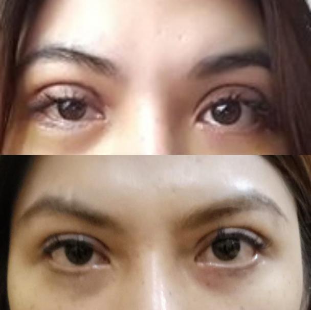 Cắt Mí Mắt Đẹp Tại Thanh Hóa
