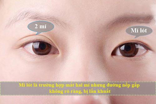 Mắt Mí Lót